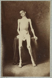 [Emaciated prisoner of war from Belle Isle, Richmond, Private William M. Smith of Co. D of 8th Kentucky Volunteers, at the U.S. General Hospital, Div. 1, Annapolis]