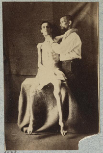 [Unidentified emaciated prisoner of war, released from prison at Belle Isle, Richmond, at the U.S. General Hospital, Div. 1, Annapolis]