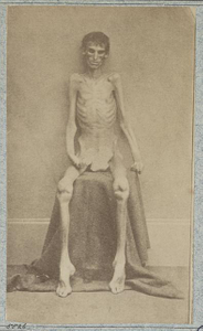 [Unidentified emaciated prisoner of war, from Belle Isle, Richmond, at the U.S. General Hospital, Div. 1, Annapolis]