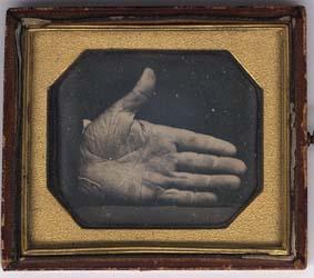 The branded hand of Captain Jonathan Walker
